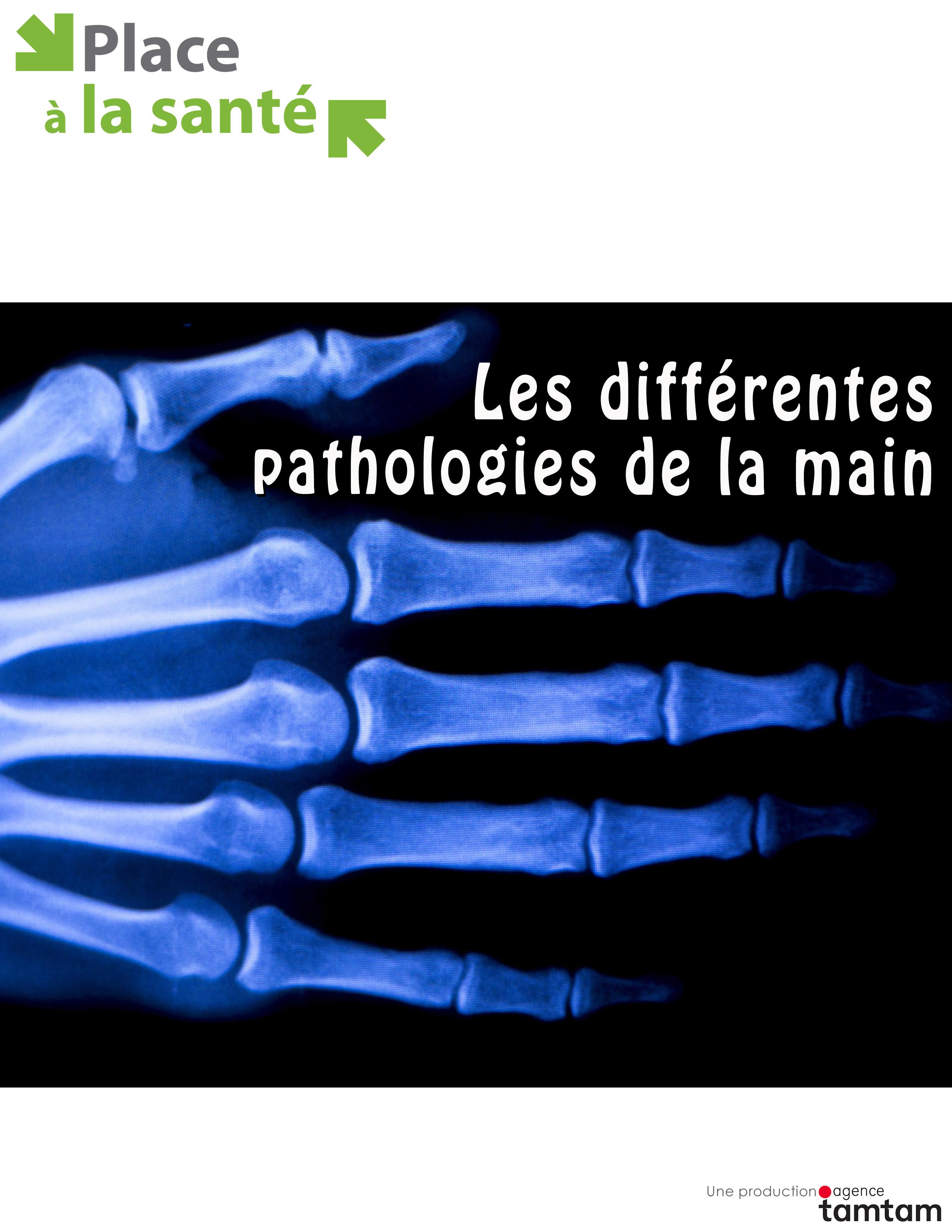 Les diff�rentes pathologies de la main