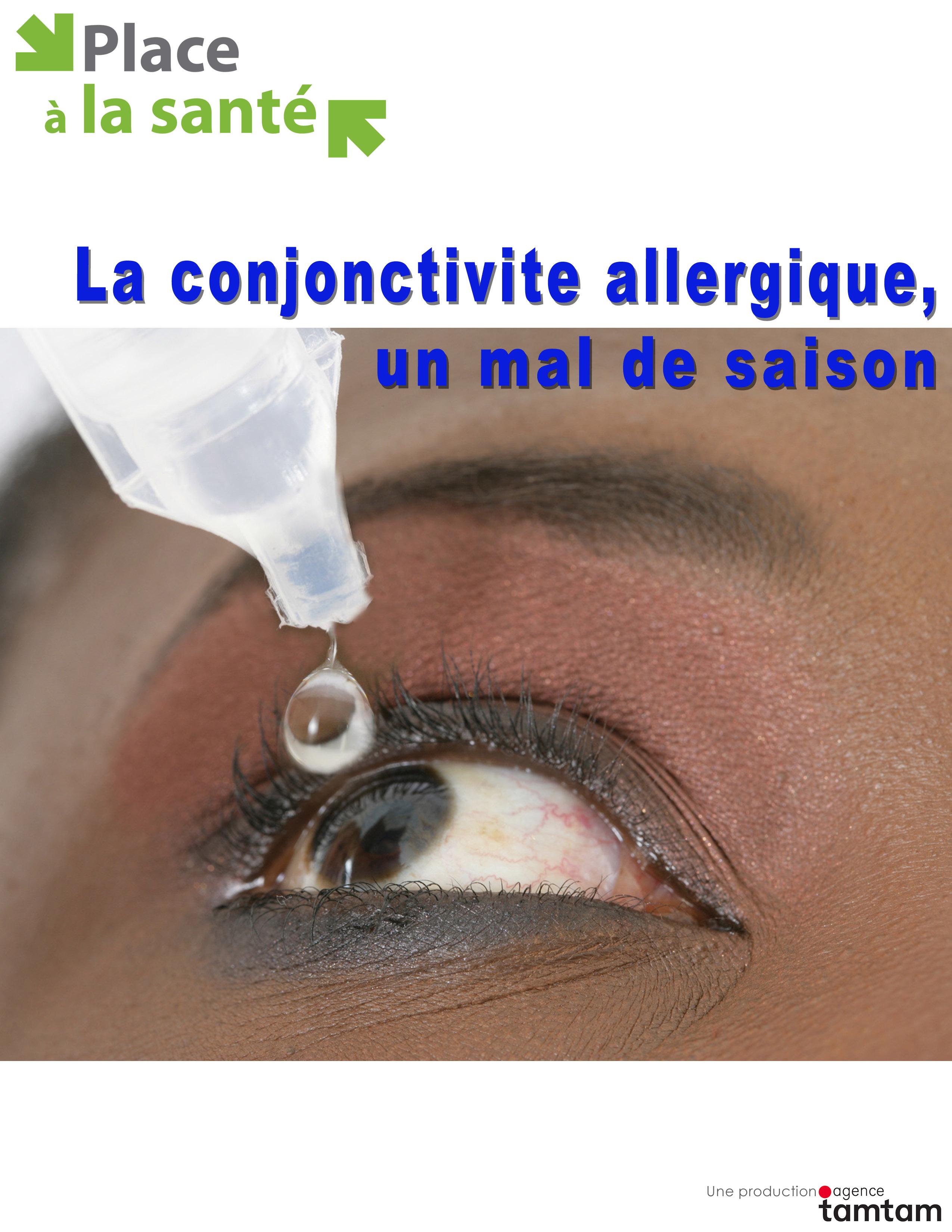 La conjonctivite allergique un mal de saison